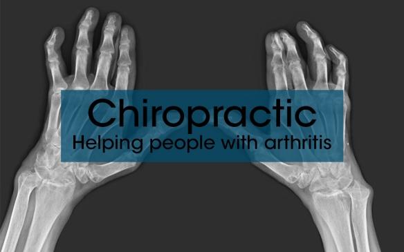 Arthritis-x-ray-hands-Chiropractic